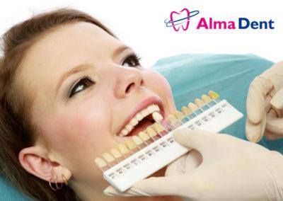 Jak wybielamy zęby