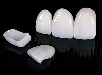 korony ceramiczne łódź