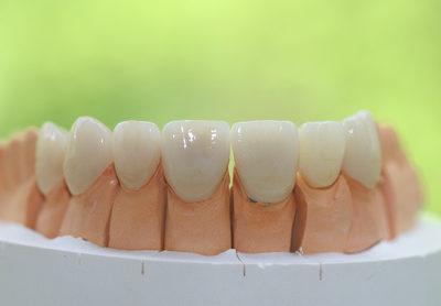 Korony dentystyczne łódź