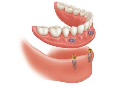 Protezy zębowe łódź