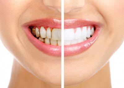 Skaling zębów łódź widzew